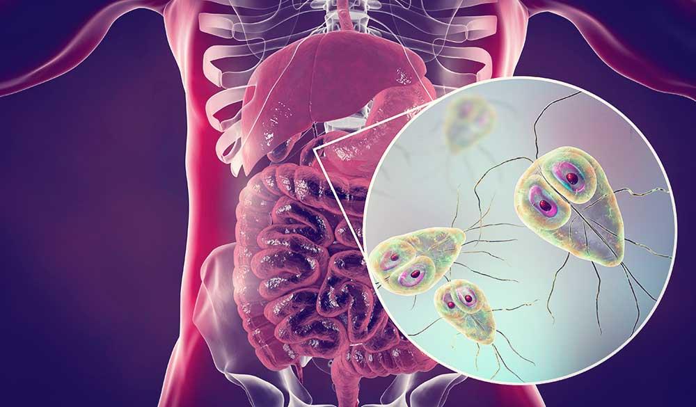 Curcumin: an antiparasitic for Giardia