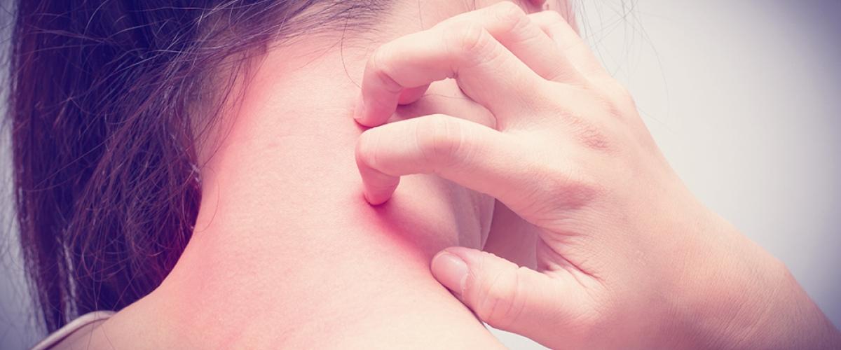 Steroid Hormone Allergy