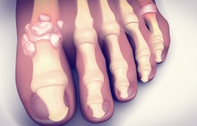 Treating Gout Naturally